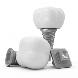 What's a dental implant made of?