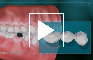 Video describing the Dental Bridge