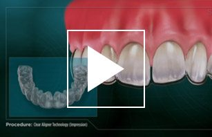 Clear Aligner Technology