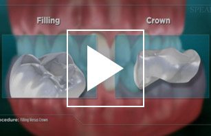 Filling vs Crown (Impression)