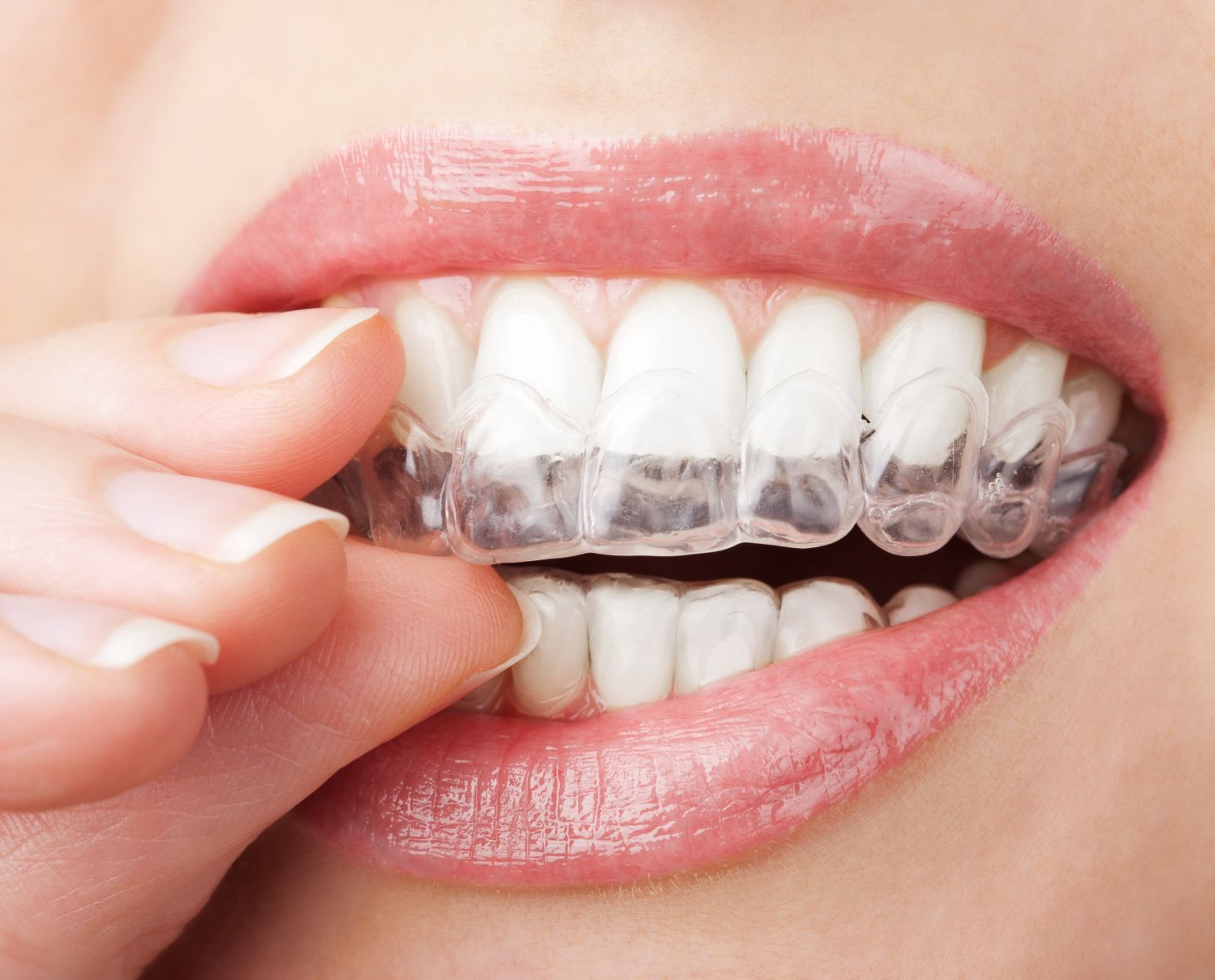 Invisalign is highly recommended by our Westchester cosmetic dentists.