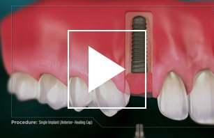 Single Dental Implant (Anterior Healing Cap)