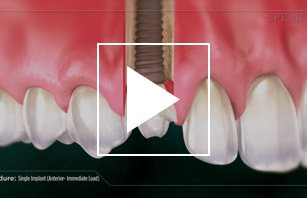 Single Dental Implant (Anterior - Immediate Load)