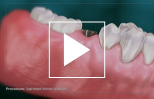 Single Dental Implant (Posterior - Healing Cap)